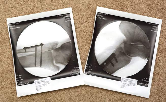 Michelle Davies | The Journal Gazette The xrays showing the three pins and plate that were put into Phil Amurgey's leg and ankle after he fell while running the trails at Franke Park.