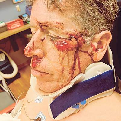 The bicycle-crash injuries suffered by Indiana Tech President Karl Einolf are evidence of what can happen when drivers disregard posted warnings.