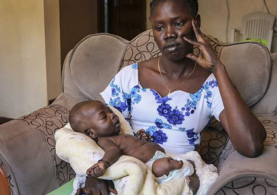 In this photo taken Thursday, Nov. 28, 2019, baby boy Ping Mayak Geer, who was born with six fingers on each hand, one stunted leg, a deformed foot and kidney swelling, lies on the lap of his mother Abui Mou Kueth in Nairobi, Kenya. (AP Photo/Sam Mednick)