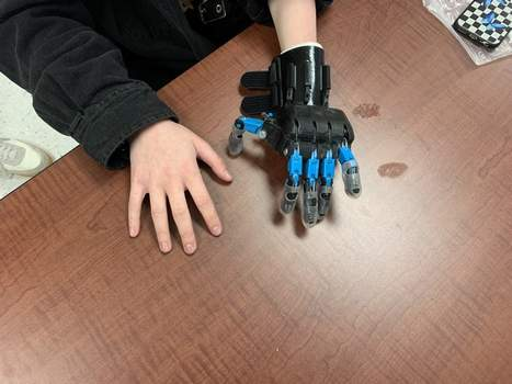 Kyra Baker chose the colors black and blue for her new prosthetic.